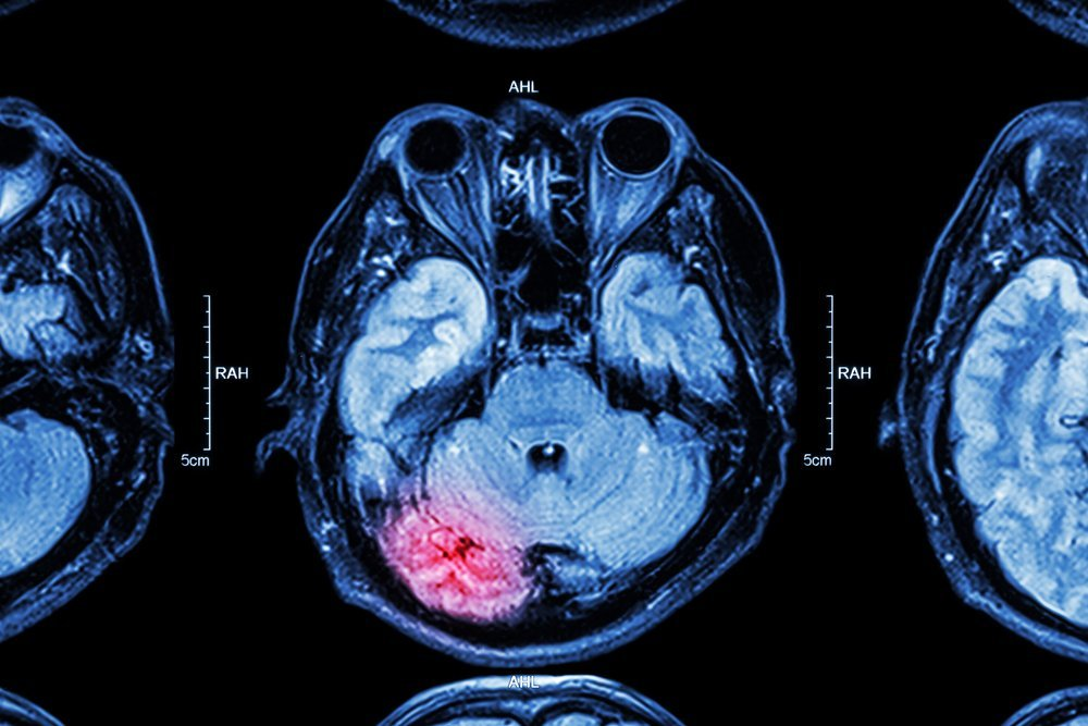 TBI: Traumatic Brain Injury, the fallout