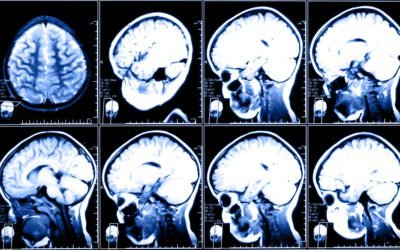 The Agony and the…..Agony of TBI