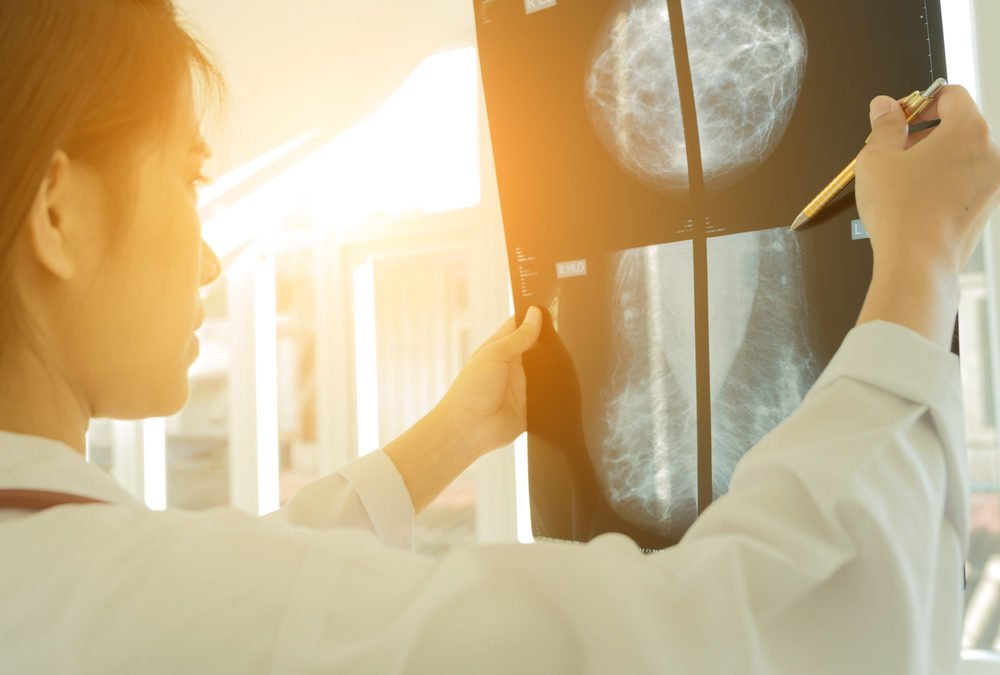 One In Three Women With Breast Cancer Treated Unnecessarily, Study Concludes