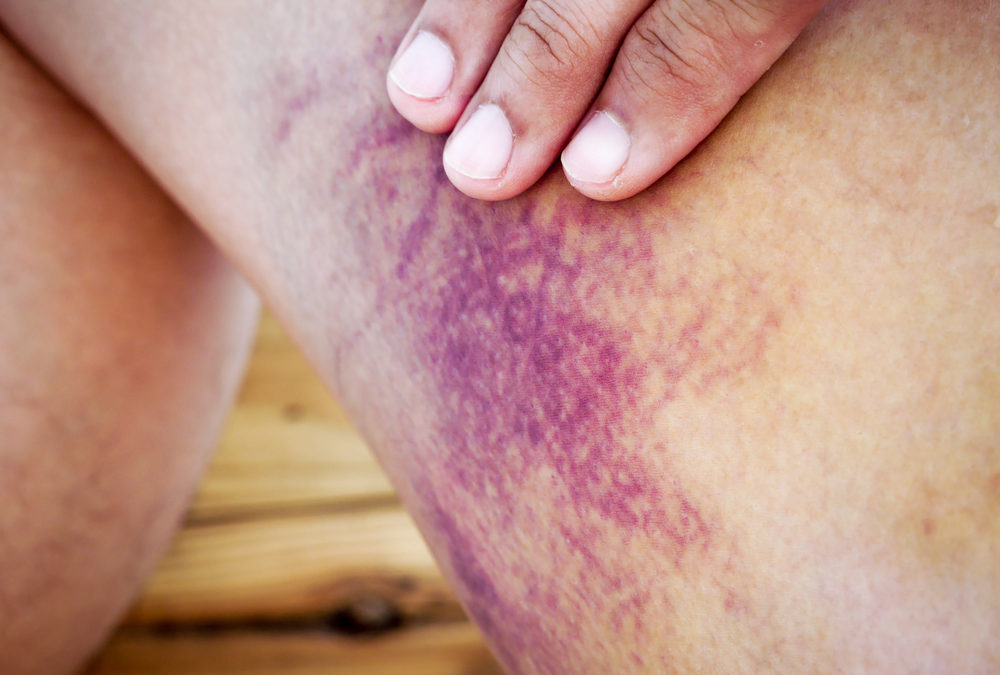 Why does mom have bruises?